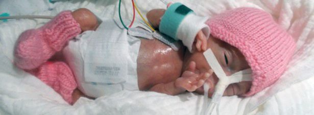 PAY-smallest-ever-prem-baby-to-survive-was-only-31-cm-long.jpg