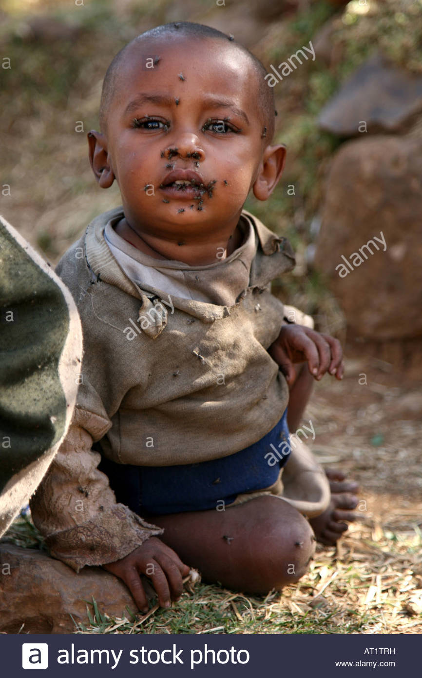 young-african-boy-with-flies-on-his-face-in-ethiopia-AT1TRH.jpg
